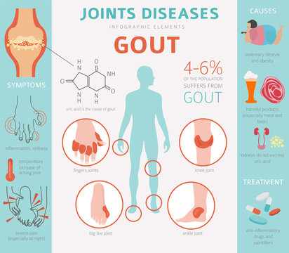 Joints diseases. Gout symptoms, treatment icon set. Medical infographic design