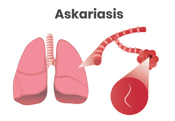 Askaris disease. Vector illustration of the larvae in lungs