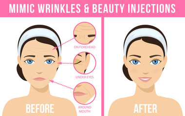Women s anti-aging skin care. Different types of facial wrinkles. Woman before and after Botox injection. Anti-aging procedure. Vector