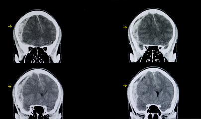 brain subarachnoid hemorrhage