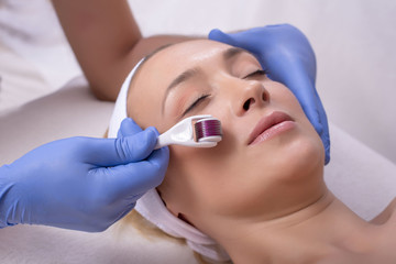 Beautiful woman during skin treatment procedure with derma roller