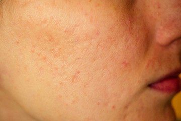 post-acne, scars and red festering pimples on the face of a young woman. concept of skin problems and harmonic failure