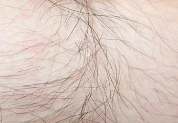 Hair on the body of the macro