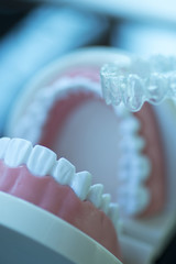 Invisible dental teeth aligners