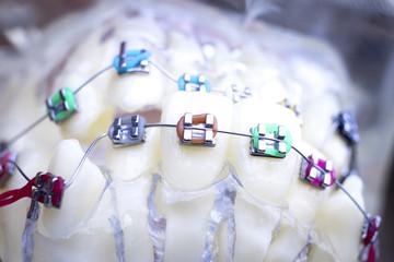 Dental metal brace teeth model