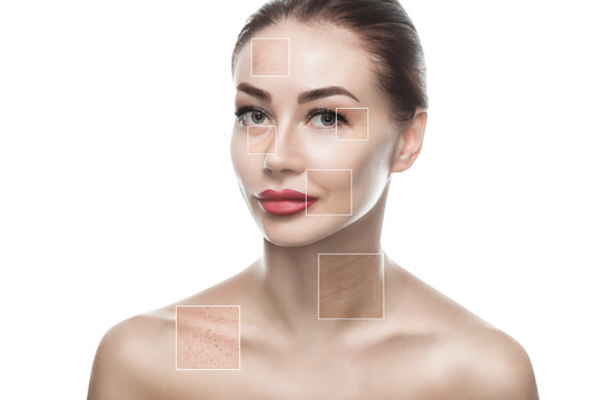Portrait of a beautiful woman on a white background, on the face are visible areas of problem skin - wrinkles and freckles. Cosmetology concept.