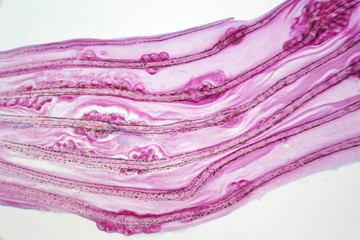 Eggs liver fluke(Parasitic flatworm) infection in fish fin.