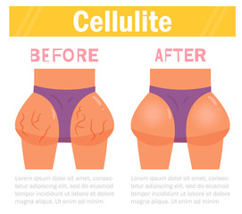 Cellulite. Before and after Vector. Cartoon. Isolated art