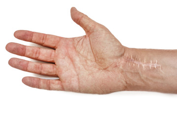 Scar with stitches on the wrist after surgery. Fracture of the bones of the hands isolated on white background
