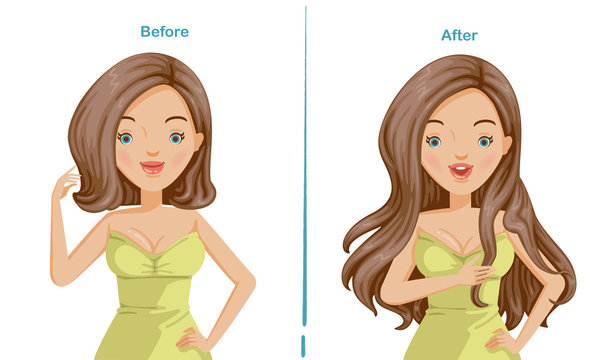 Hair extension of woman. before and after hair extension. trendy hairstyles, haircuts, long hair and short hair stylish. wigs and beauty innovations Illustrations for beauty salon.