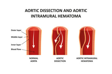 Aortic dissection and aortic intramural hematoma
