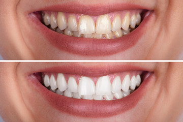Woman's Teeth Before And After Whitening Fototapete