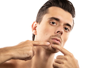 Young man is squeezing pimple on his chin