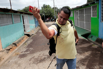 Winston Potosme looks at his injury during a protest against Nicaraguan President Daniel Ortega's government in Managua