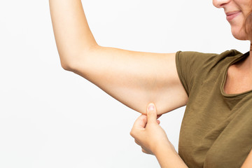 Woman with flabby skin in her arm