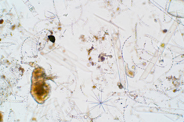 Marine aquatic plankton under microscope view