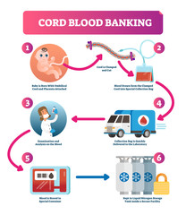 Cord blood banking infographic vector illustration. Explanation diagram.