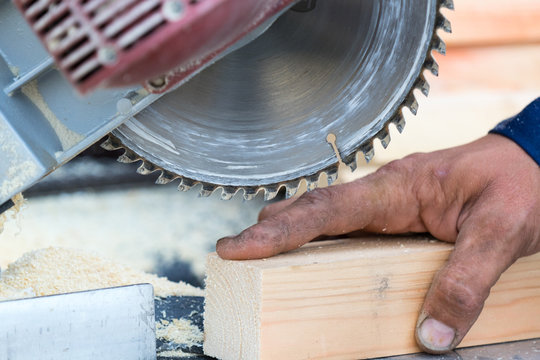 Injury when working with a saw. Place for your text.