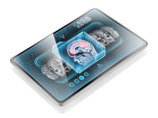 Scan of brain activity on modern medical tablet
