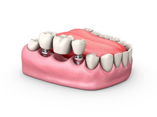 3d Illustration of a Fixed partial denture bridge, isolated white