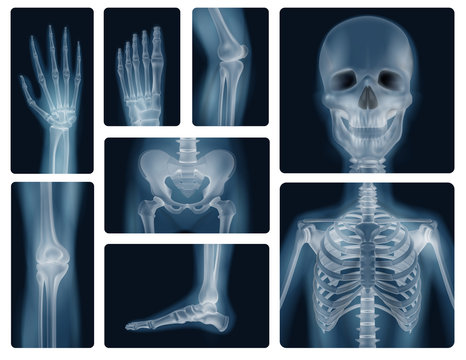 Human Bones Realistic X-ray Shots