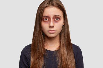 Headshot of attractive brunette woman with bruises around eyes, beat by aggressive husband, looks with miserable expression directly at camera, poses over white studio background. Victim of abuse