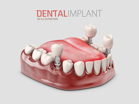 3d illustration of Human Dental implant isolated gray