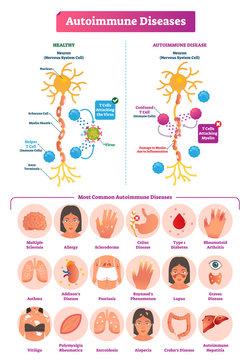 Autoimmune diseases vector illustration. Various illness collection set.