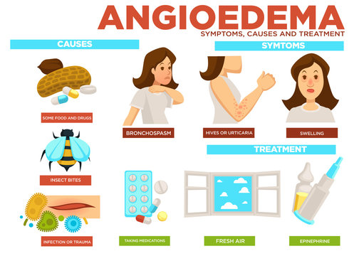 Angioedema symptom, causes and treatment of disease vector