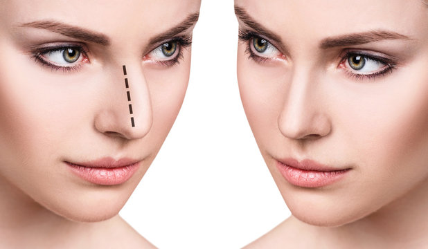 Female face before and after cosmetic nose surgery.