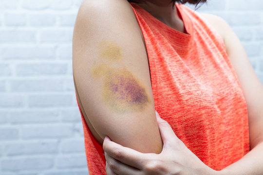 Bruise on woman arm. Injection bruises. Doctor and patient.