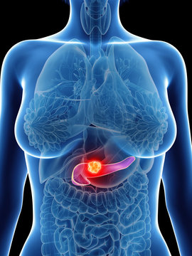 3d rendered medically accurate illustration of a womans pancreas cancer