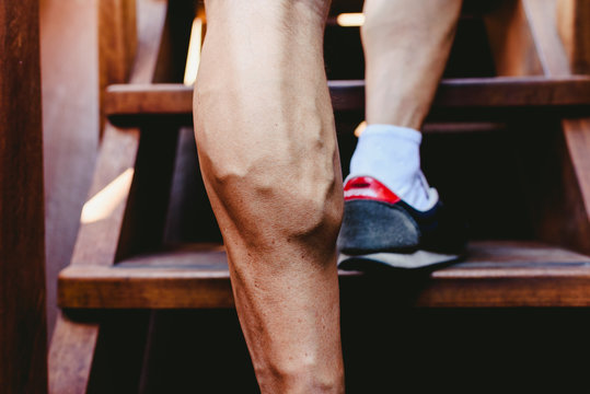 Large visible veins of calf muscles in a man's leg.