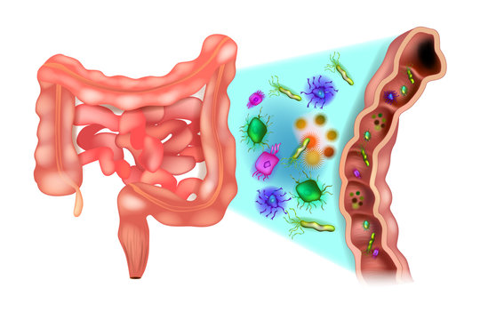 Dysbiosis (also called dysbacteriosis). Dysbacteriosis of the intestine - Colon bacteria.