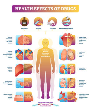 Health effects of illegal drugs vector illustration diagram. Disease set.