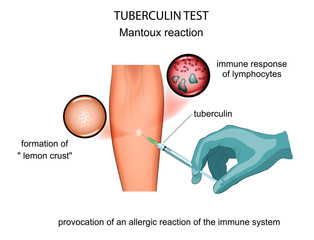 tuberculin test. mantoux