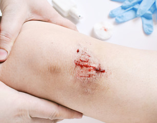 Close-up of bloody gash on knee. Wound treatment with antiseptic