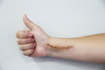 Human hand damage