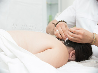 Young woman lying on medical couch. Therapist doing acupuncture treatment in therapy room.