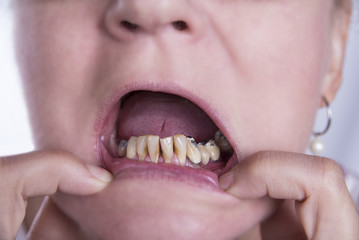 Woman with bad teeth and tartar from smoking and old crowns