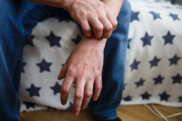 Closeup men itching and scratching by hand. Psoriasis or eczema on the hand. Atopic allergy skin with red spots