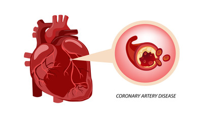Heart disease : Coronary Artery Disease (CAD)
