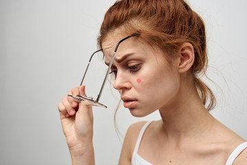 woman with a pimple on her face puts on glasses