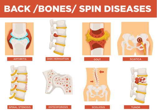 Back, bones and human spin diseases explanation vector