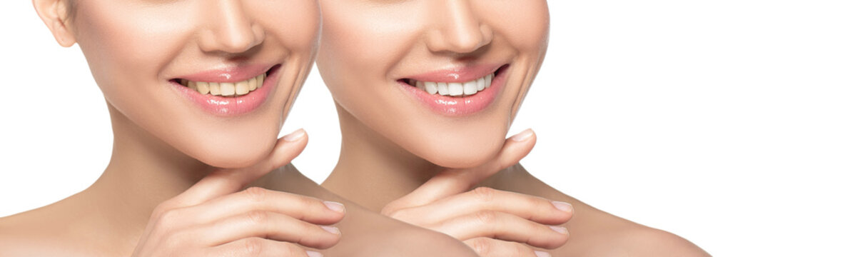 woman smile before and after whitening teeth isolated on white