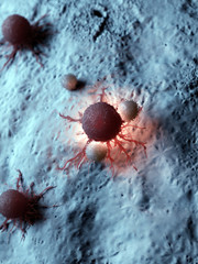 3d rendered medically accurate illustration of a cancer cell being attacked by white blood cells