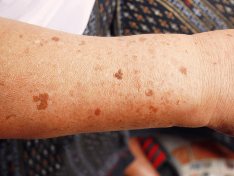 Dark spots on the skin on the arm.