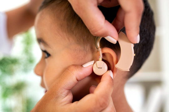 Helping little child to hear sound again