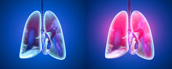 3D rendered illustration of healthy and infected lungs in comparison.