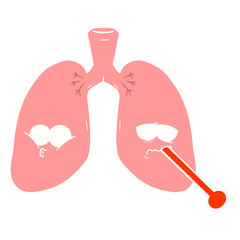 flat color style cartoon unhealthy lungs
